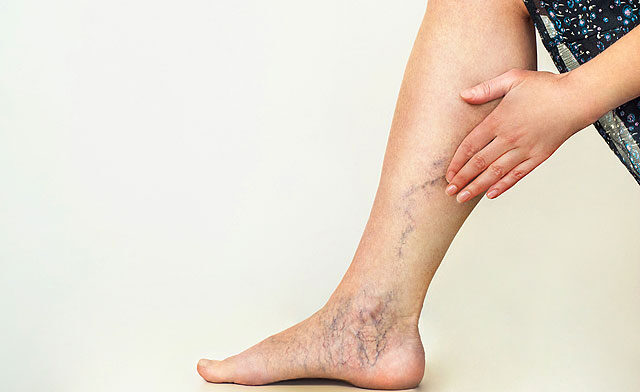 futó fájdalmak a bokán