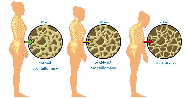 Csontritkulás   TermészetGyógyász Magazin