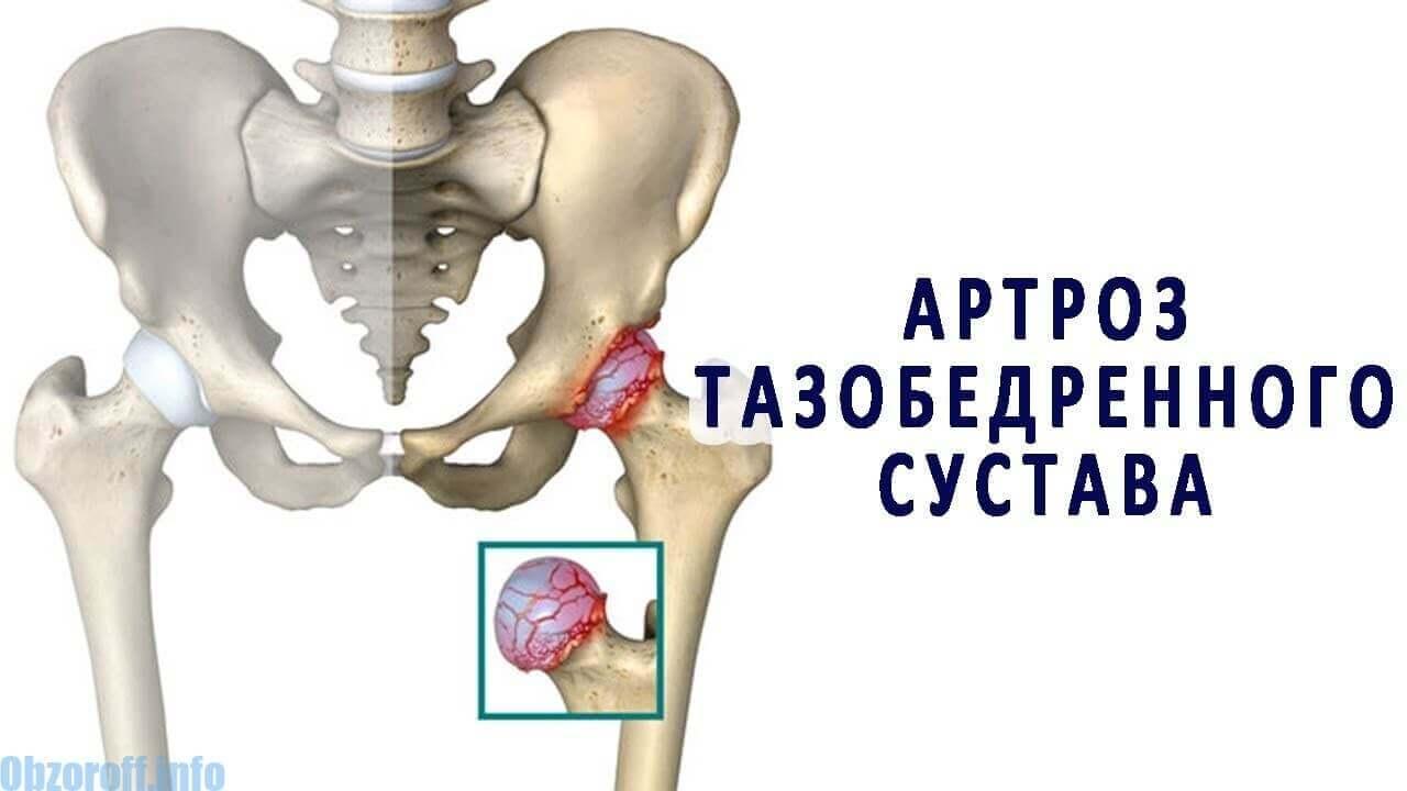 artrózis és kezelési módszerei)