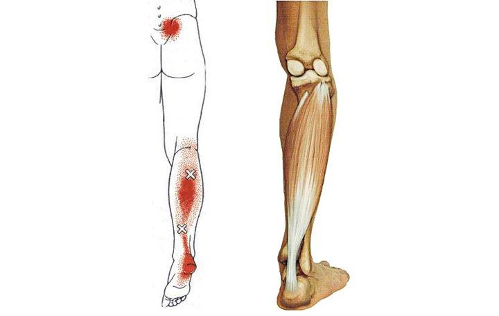 fájdalom az izmok karjai és lábai ízületeiben)