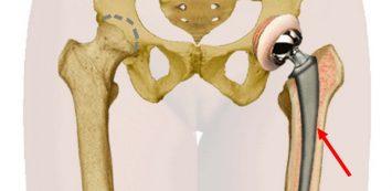 váll- és csípőízületek