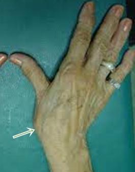 ízületi arthrosis a kéz