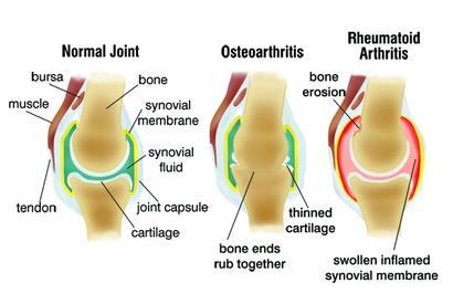 artrózis lefolyása ízületek kénkezelése