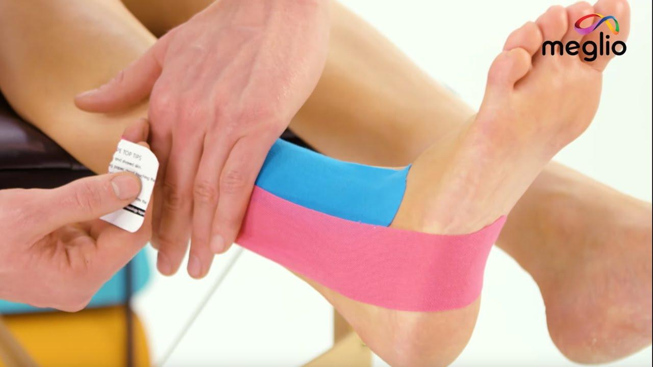 ujjízület-sprain kezelés