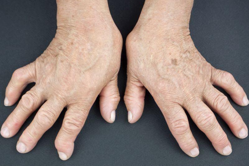 Hogyan azonosítható a rheumatoid arthritis? - HáziPatika