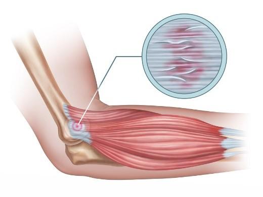 könyök epicondylitis tünetei és kezelése)
