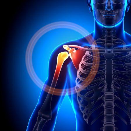 a vállízület osteoarthrosisának kezelése
