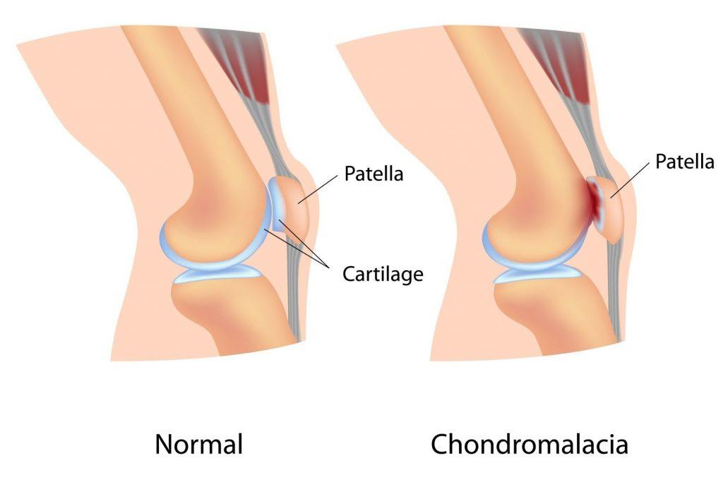 hogyan kell kenni a térd artrózisát)