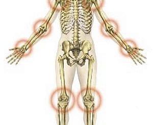 szulfasalazin az ízületek reumatoid artritiszére