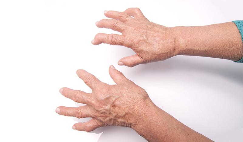 a kéz fájdalma súlyos a rheumatoid arthritisben