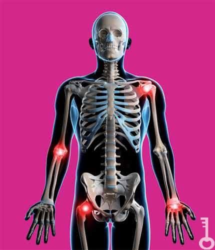 artrózis és ízületi gyulladás kezelésére szolgáló gyógyszerek)