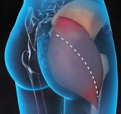 mit kell kenni, ha a csípőízület fáj