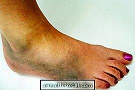 boka tünetek kezelése és kezelése)