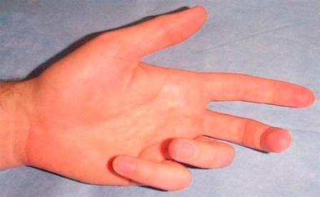 fáj a bal kéz gyűrűujja ízülete)