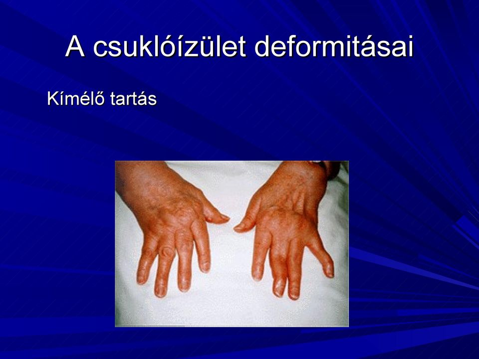 a csuklóízületek és a kézízületek fájdalmainak okai)
