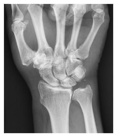 carpal carpal artrosis