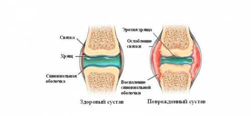 osztenil térd artrózisával)