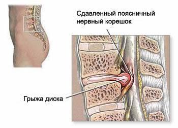 osteochondrosis neck treatment
