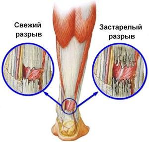 kashpiri ízületi kezelés