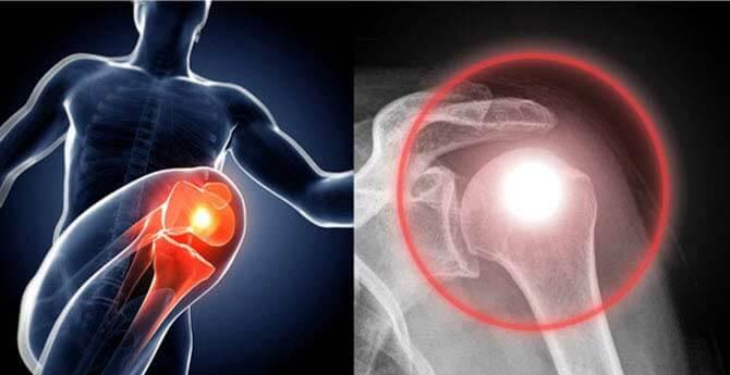 artrózis lefolyása)