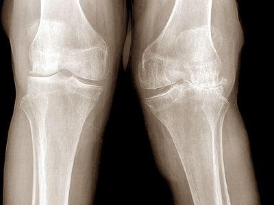 források artrózis kezelésére