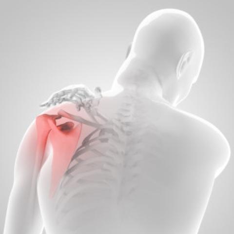 fizikai gyakorlatok váll fájdalom