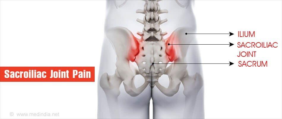 sacroiliac ízületi sérülés tünetei az ízületek gyulladásgátló gyógyszereinek neve