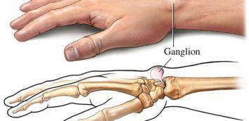 fájdalom a könyökízület medialis epikondiljában
