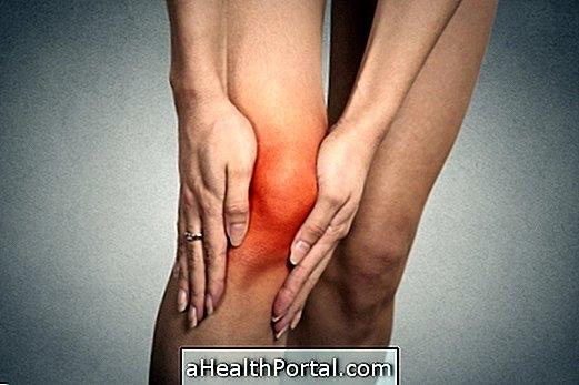 ízületi szinovitis tünetei és kezelése)