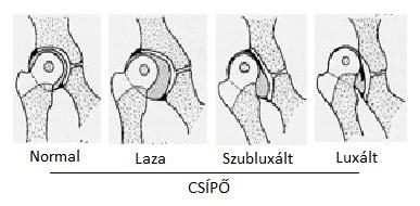csípőízületi tünetek és kezelési áttekintés