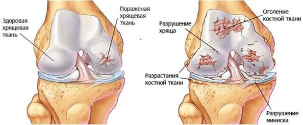 orvosi epe vállízület artrózisával)