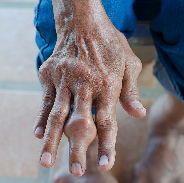 csomók az ujjainál ízületi gyulladás esetén