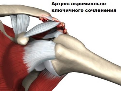 a térdízület 2. fokozatának deformáló osteochondroze)