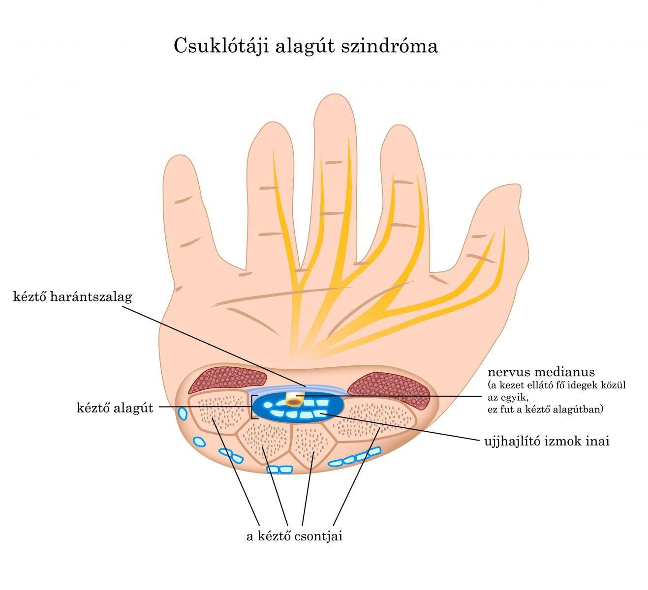 aki kezeli az ujjak ízületeit)