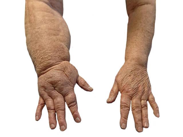 arthrosis polymagus kezelése a lábak és a karok ízületi gyulladásának tünetei
