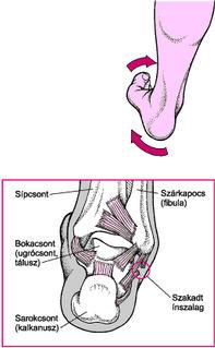 boka láb sérülése)