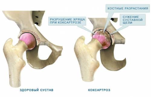 a csípő coxarthrosisának kezelése teraflex segítségével