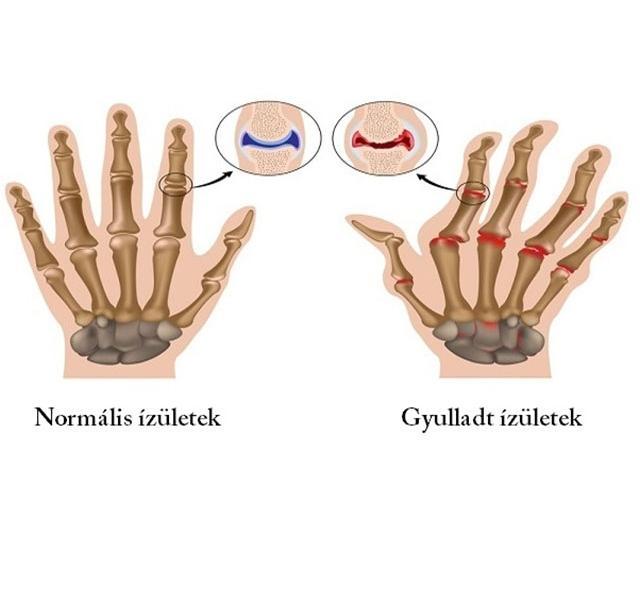 D-vitamin és a rheumatoid arthritis