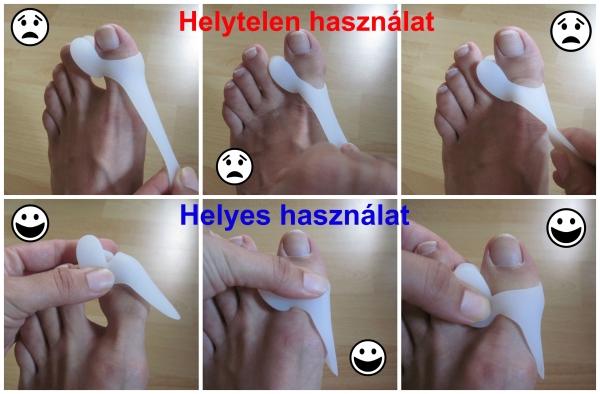 fájdalom a második ujj ízületében járás közben