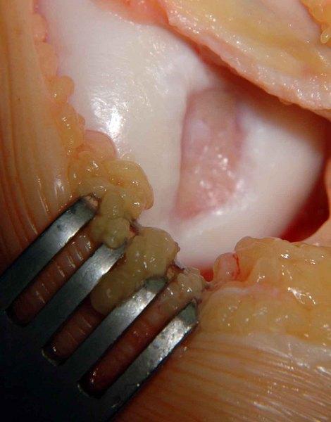 térdízület transzplantáció