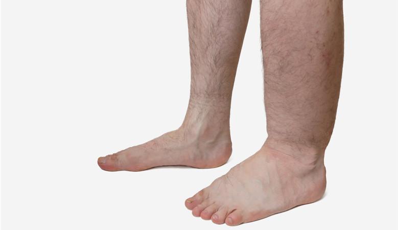A bal láb duzzanata okozza