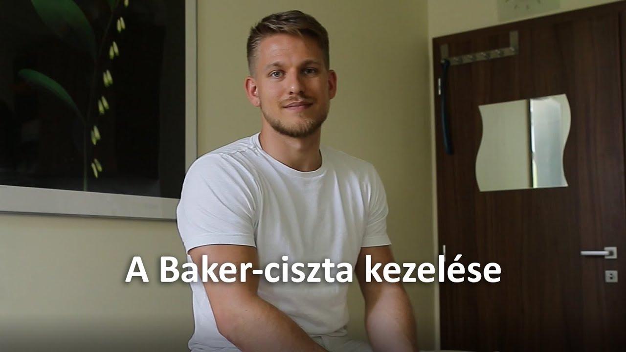 Hogyan kezelhető a Baker-ciszta?