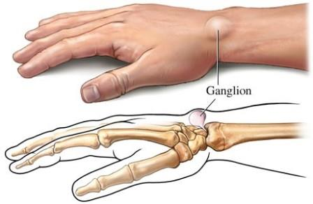 fáj a kéz és a könyök ízületei