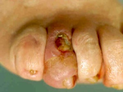 a lábujjak falának ízületi gyulladásának kezelése)