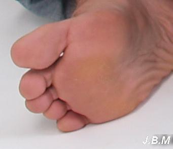a lábujjak ízületei artrózisa)