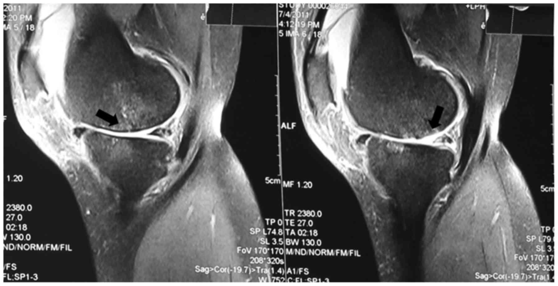 osteoarthritis knee mri