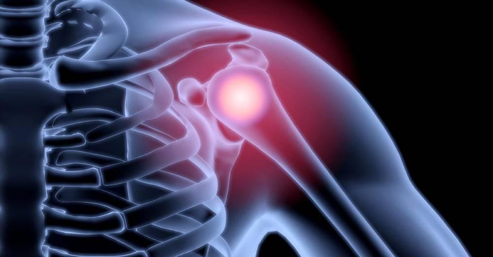 Arthritis injekciók