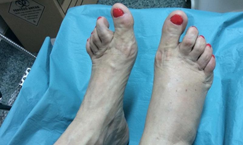 a lábujjak ízületeinek károsodása kenőcs a fájdalomra a térdízület fórumában
