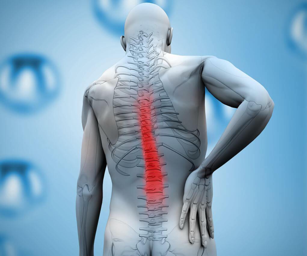 spondylarthrosis gerinctelen artrosis kezelése)