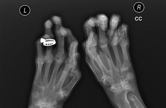 Hogyan lehet felismerni és leküzdeni a láb osteoarthritisét?